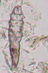 Hårsækmide (D. canis)