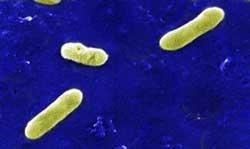 Hos hunde skyldes lungebetændelse ofte bakterien Bordetella bronchiseptica